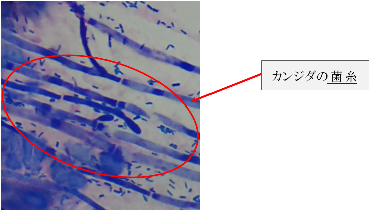 【使用】 カンジダ 菌糸 2019,8,9