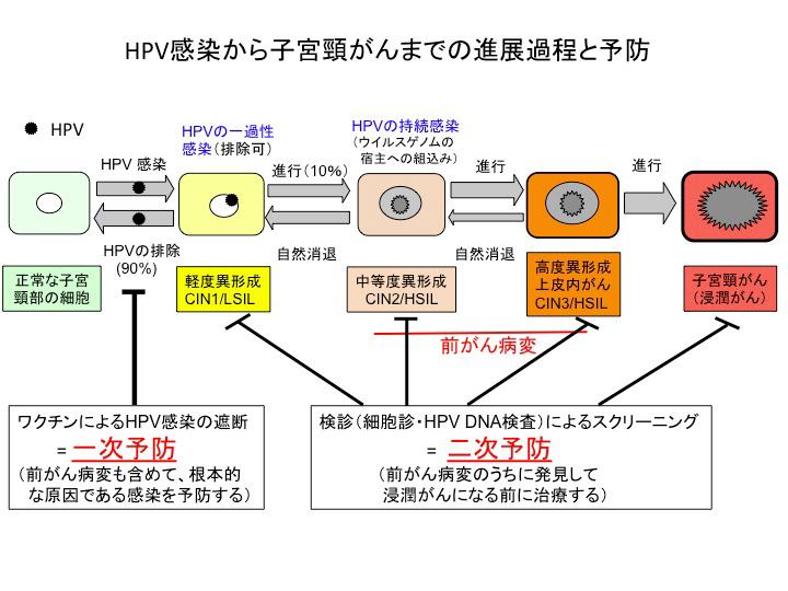 HPV② 進行図解