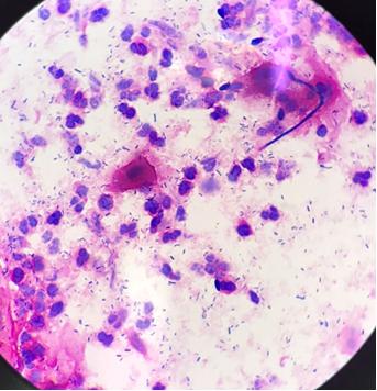イカ臭い原因!?これが謎の病気、細菌性腟症だ!!