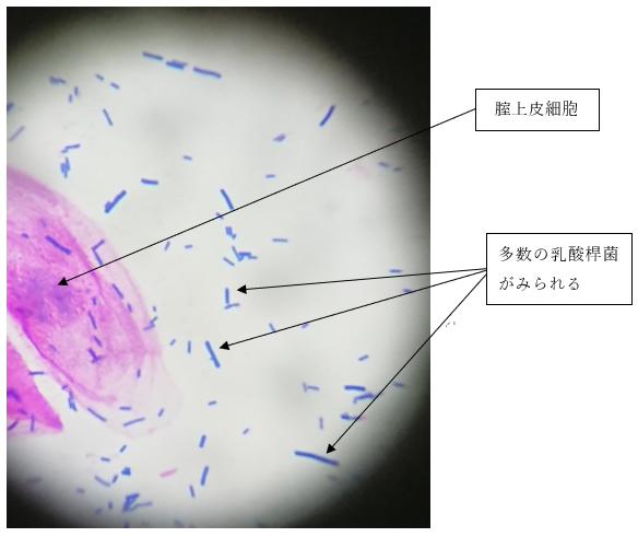 細菌性膣症③